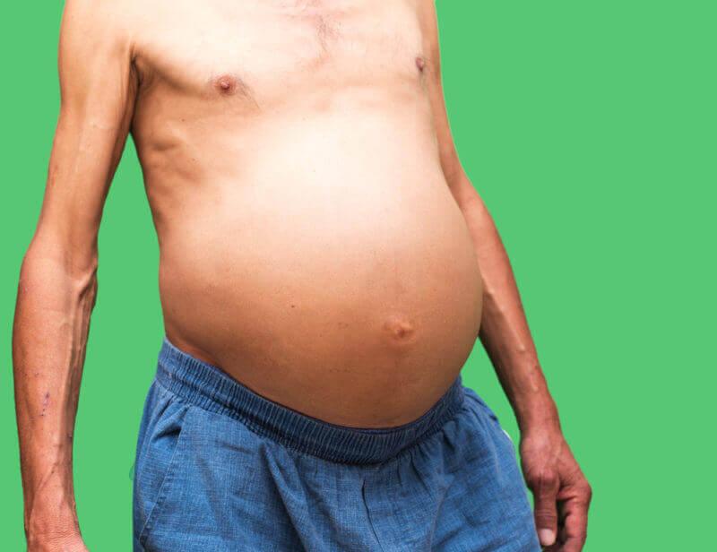cancer liquido abdominal