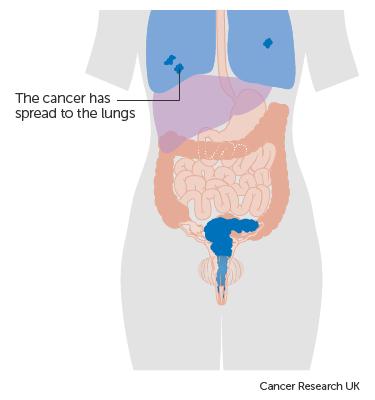 cervical cancer metastatic sites