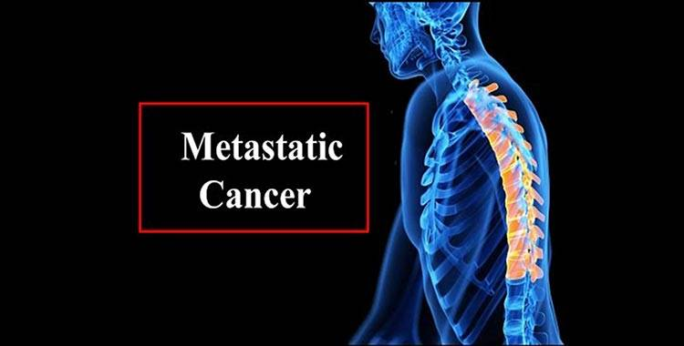 metastatic cancer how