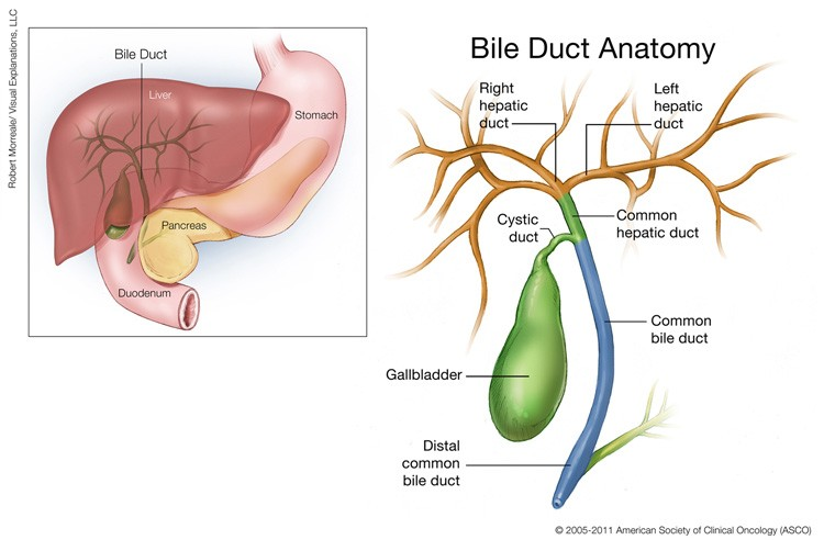 aggressive cancer of the bile duct ciuperci zacusca