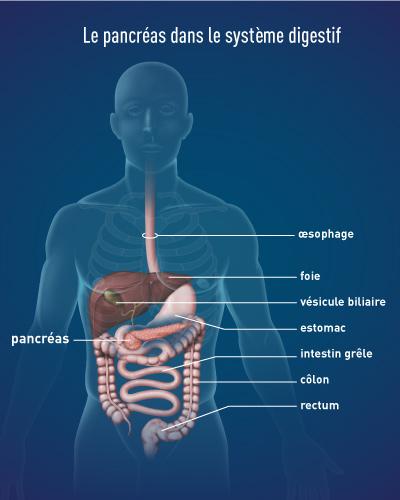 cancer de pancreas guerison