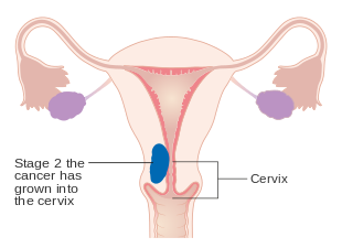 cervical cancer endometriosis)
