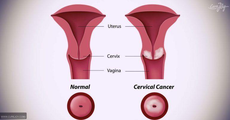 cancer colon adenocarcinoma hpv warzen ursache