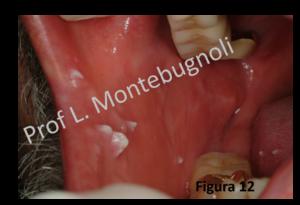 come si manifesta il papilloma virus in bocca