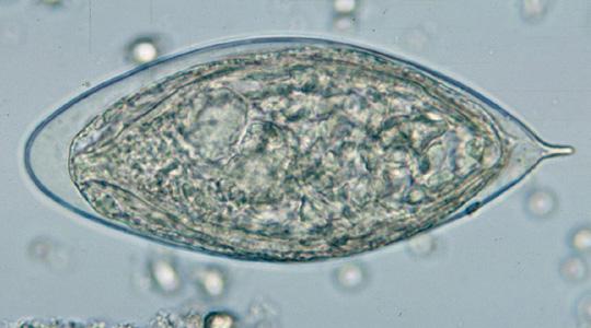 schistosomiasis eggs