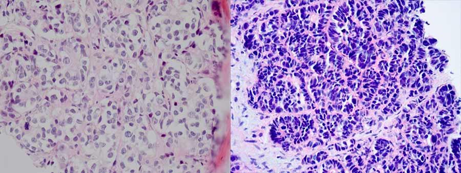 neuroendocrine cancer of prostate
