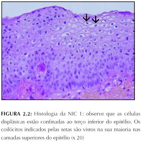 virus papiloma humano nic 1)