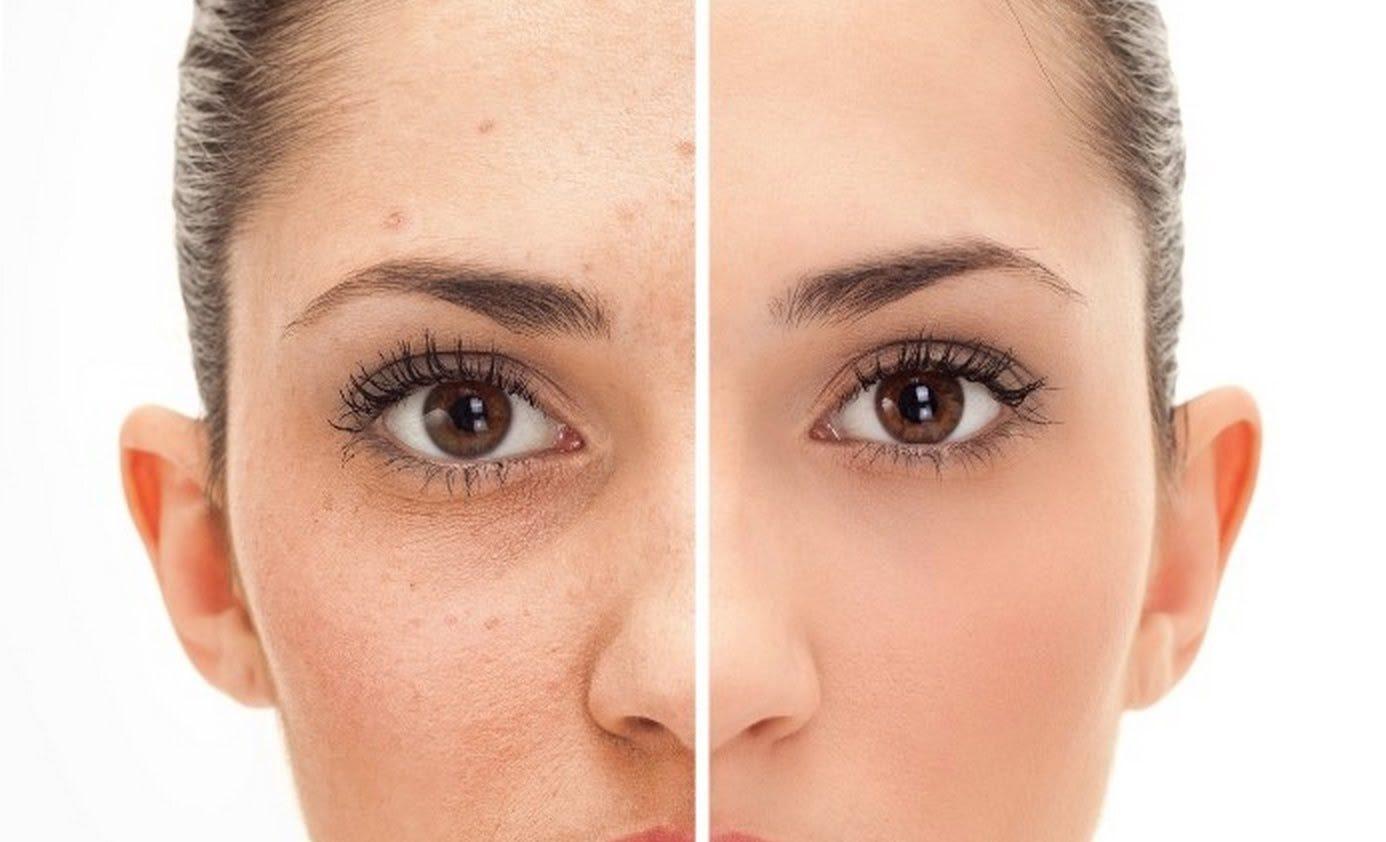 wart treatment on face