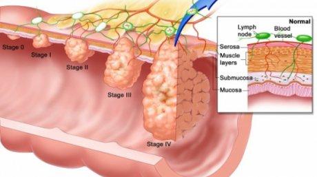 simptome in cancerul de colon)