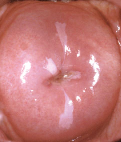 virus del papiloma humano en el utero)