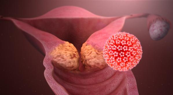 papiloma escamoso tem cura