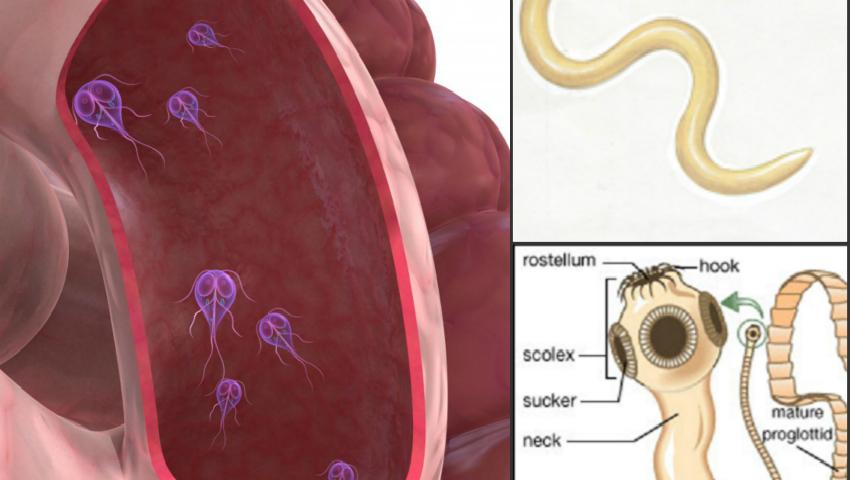 infestare cu paraziti simptome