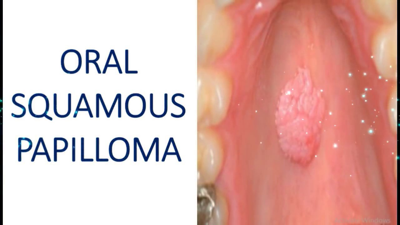 squamous papilloma tongue removal)
