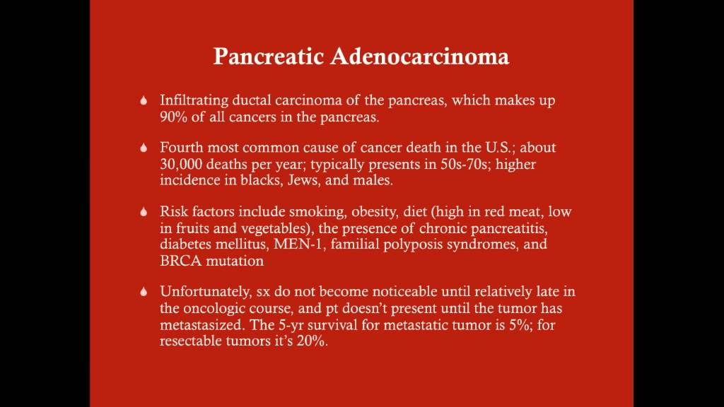 pancreatic cancer usmle