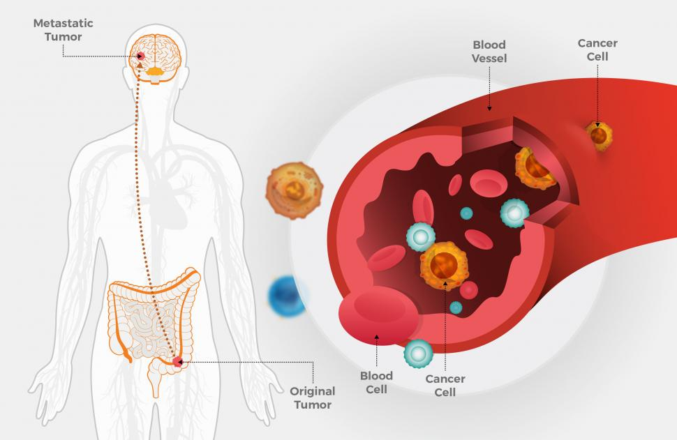 can hpv cause rectal cancer