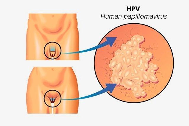 human papillomavirus symptoms male