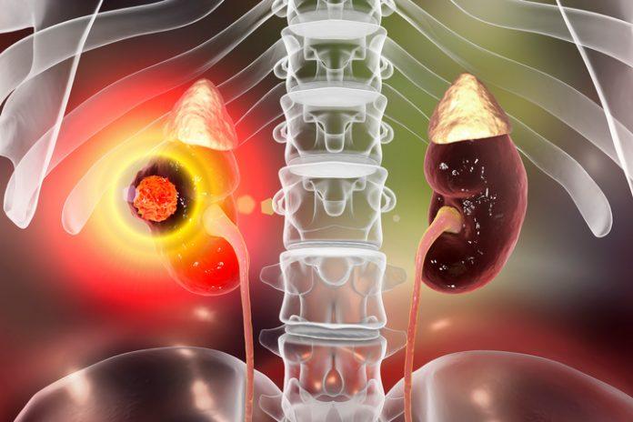Testele de sange ar putea detecta cancerul de rinichi cu 5 ani mai devreme