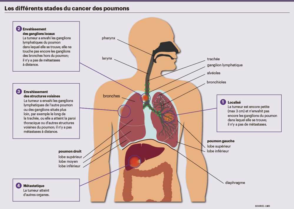 cancer poumon maligne)