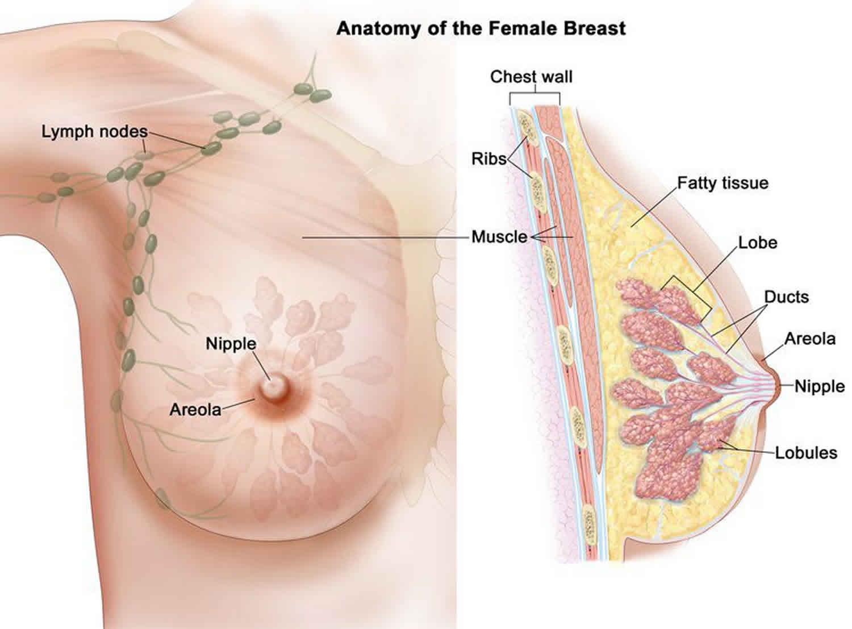 papillomas in breast tissue)