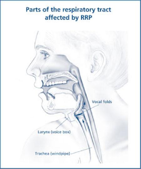 respiratory papillomatosis diagnosis