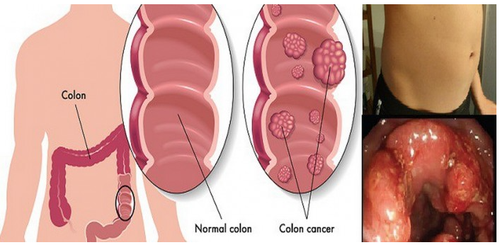 cancer la colon)