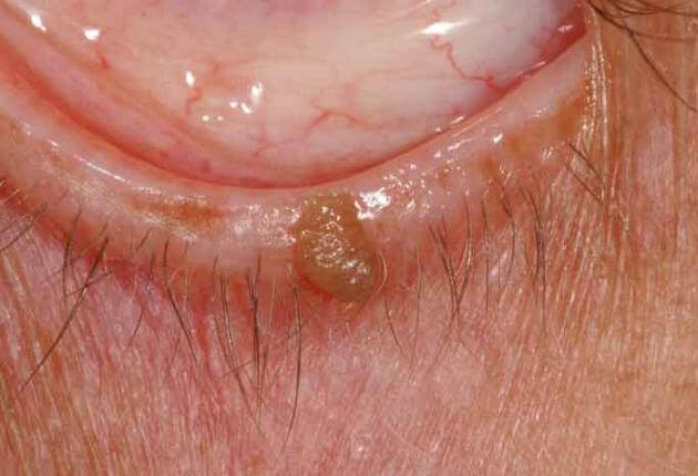 eyelid wart (papilloma) treatment