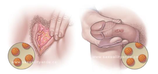 papiloma humano como se produce)