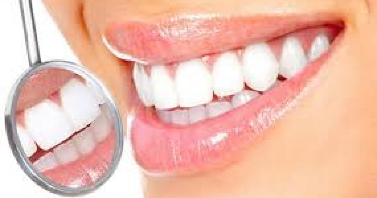 Cavitate bucală - Wikipedia