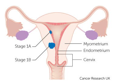 uterine cancer questions)