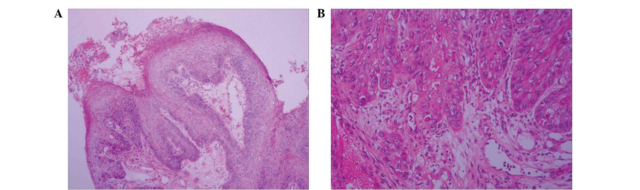 papillomas to carcinomas)