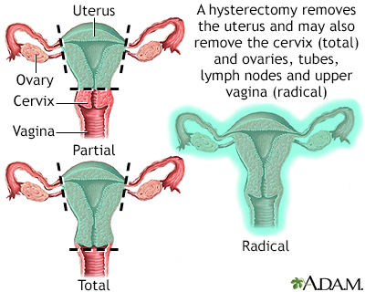 of the uterus - Translation into Romanian - examples English | Reverso Context