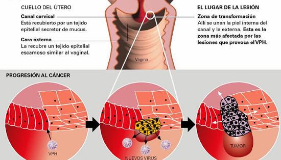 virus papiloma humano cancer uterino