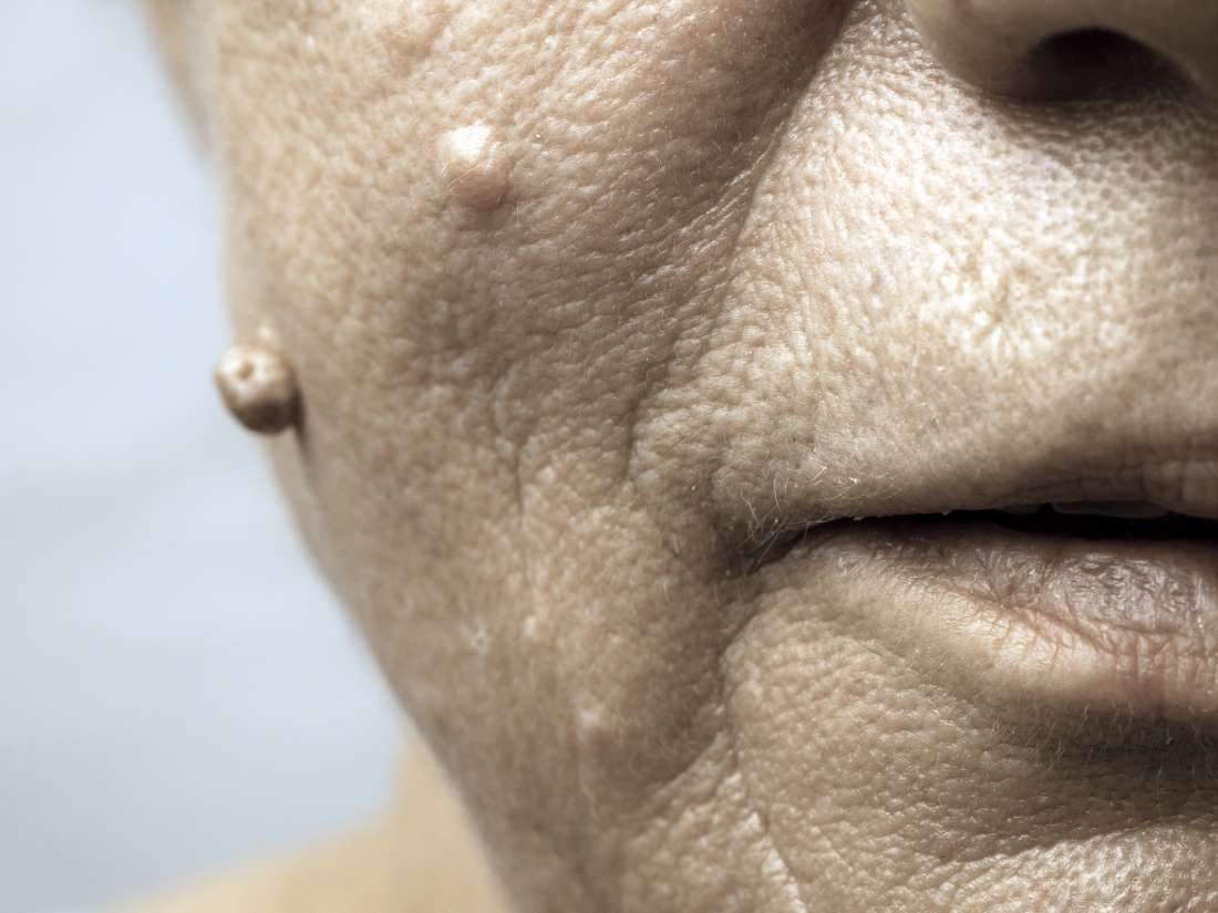 warts treatment face