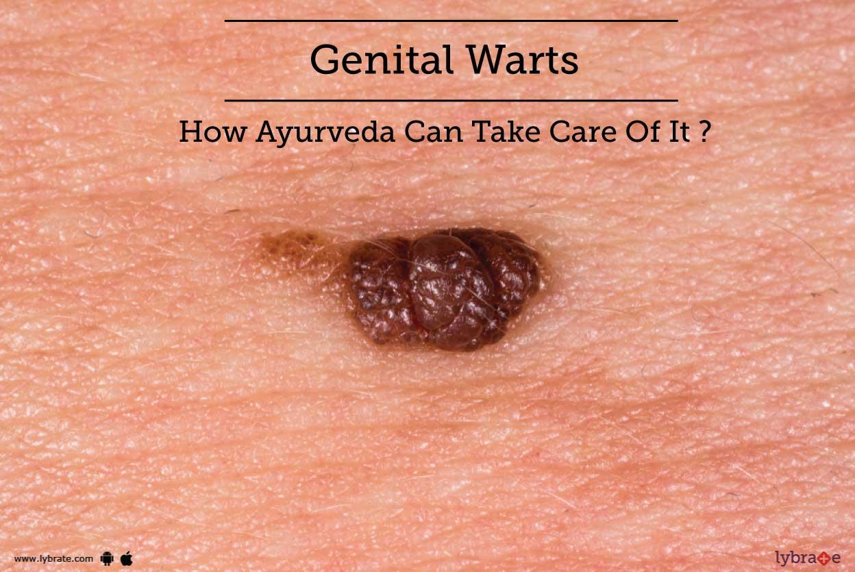 hpv warts hard or soft)