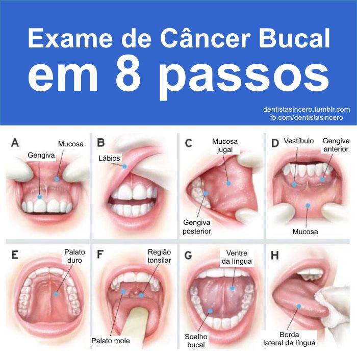 cancer na boca por hpv