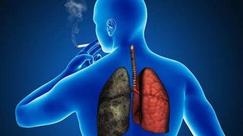 cancerul bronhopulmonar simptome
