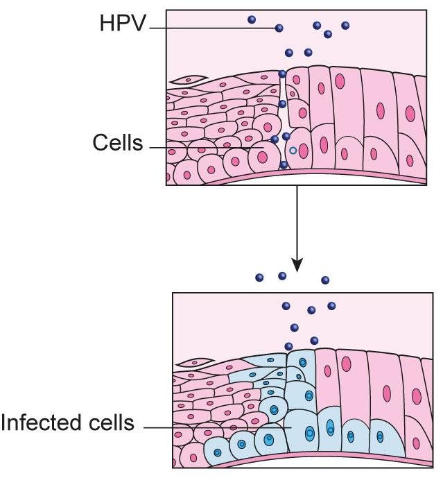 hpv cancer cells cervix)