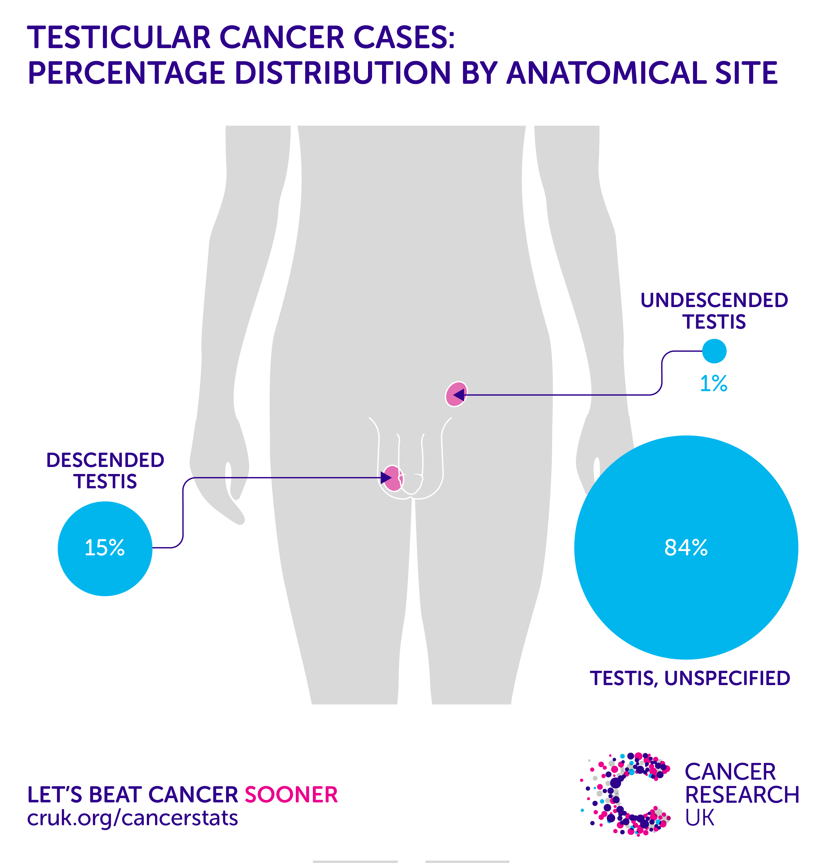 testicular cancer uptodate