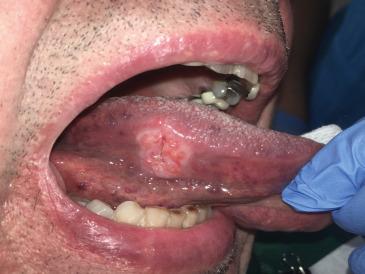 cancer bucal definicion)