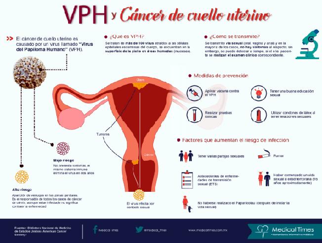 cancer de cuello uterino por papiloma humano