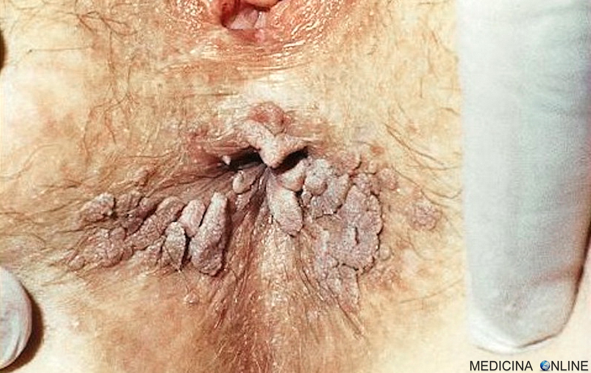 intraductal papilloma nhs