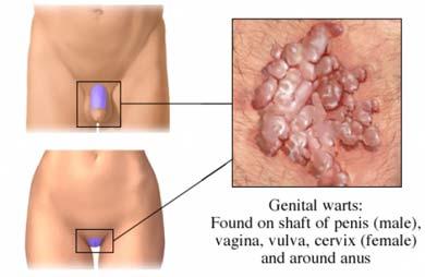ciuperci genitale