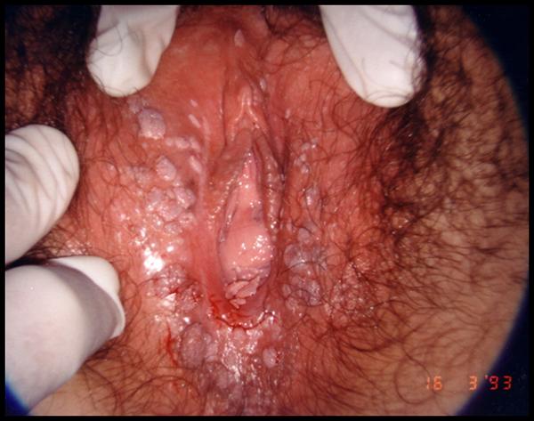 sintomi hpv collo utero