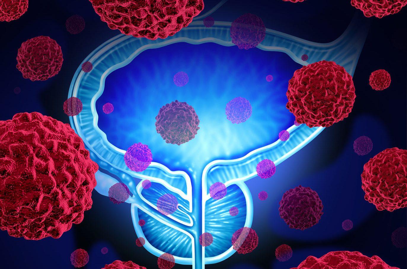 Lista de referință a articolelor despre cancerul de prostată