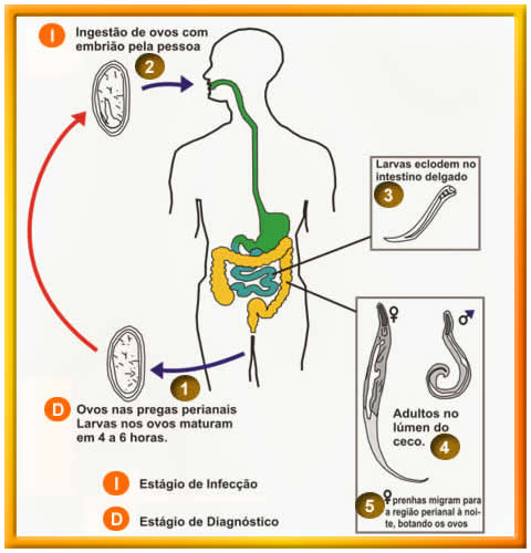 oxiurose sintomas
