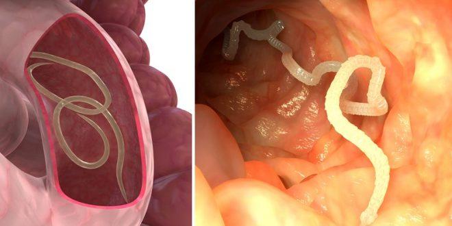 kako otkriti parazite u crijevima
