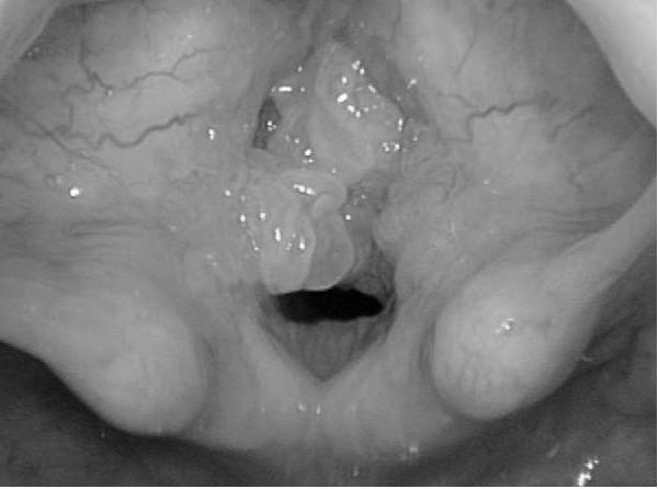 respiratory tract papillomas