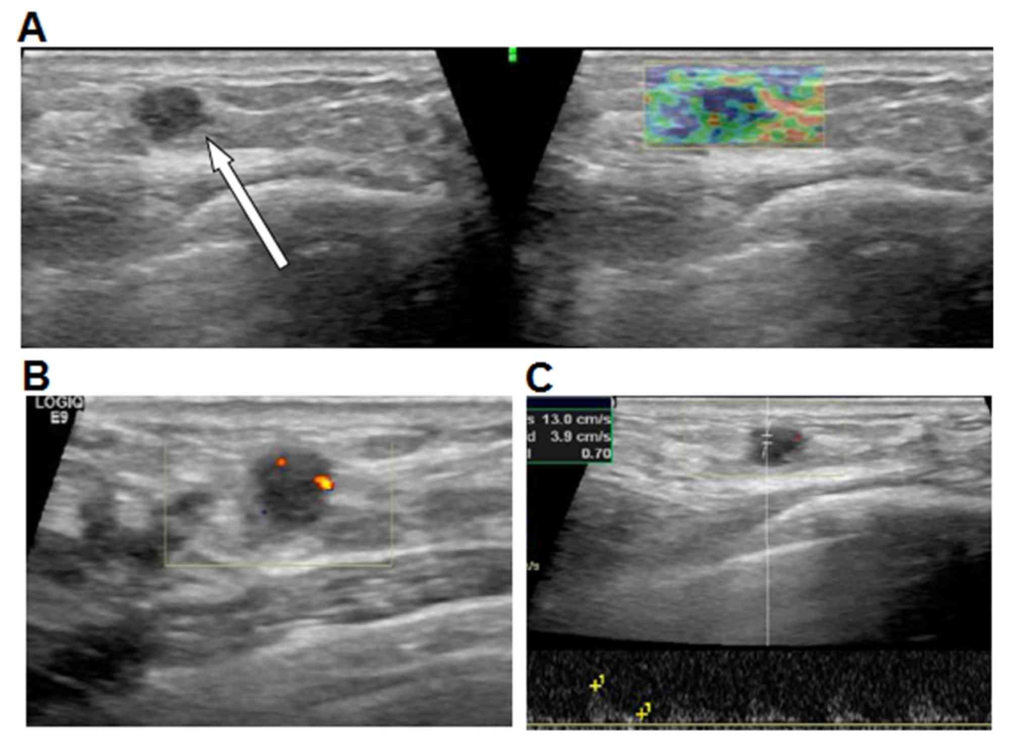 breast cancer and papillomas