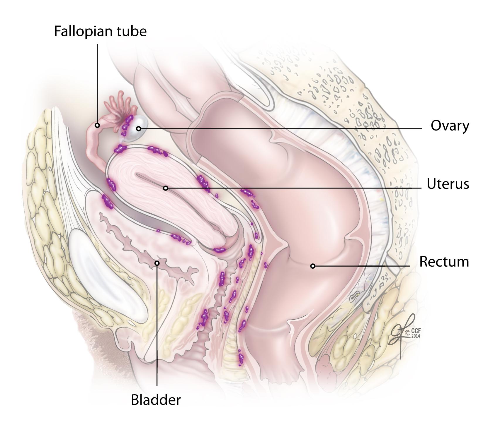 cancer cervical que produce