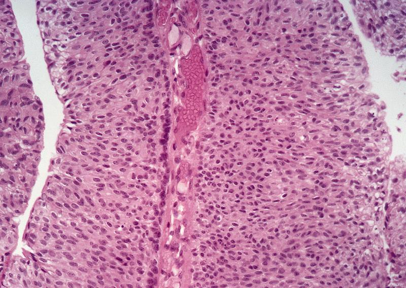 focal papillary urothelial carcinoma